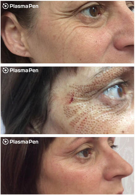 plasma-pen-treatment-before-and-after-crows-feet-full-size-09_2